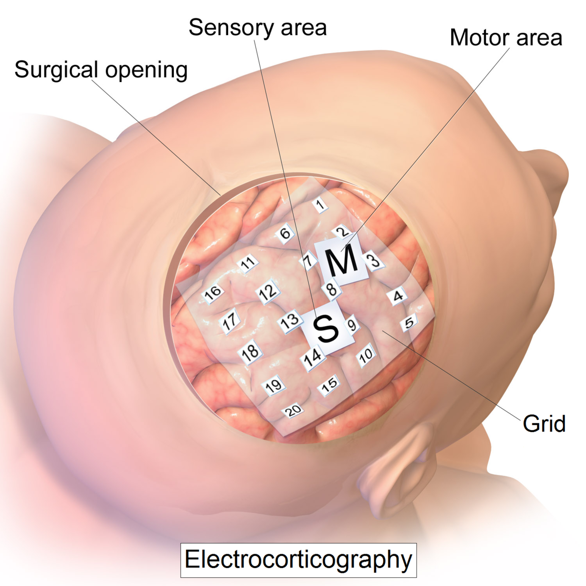 Intro to Brain Computer Interface